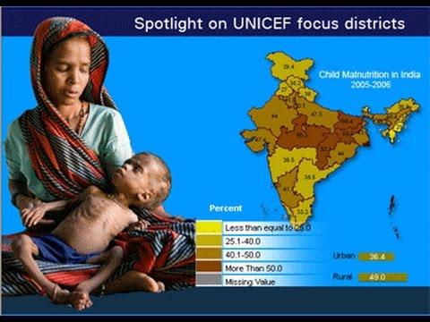 ias4sure.com - Malnutrition in India